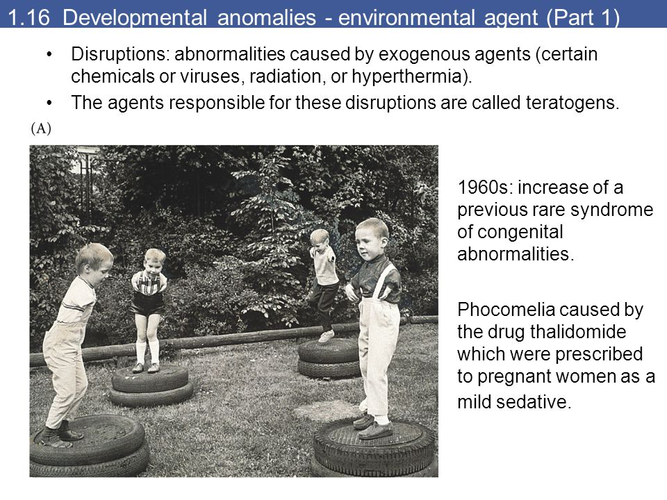 1.16 Developmental anomalies - environmental agent (Part 1) Disruptions: abnormalities caused by exogenous agents (certain chemicals or viruses, radia