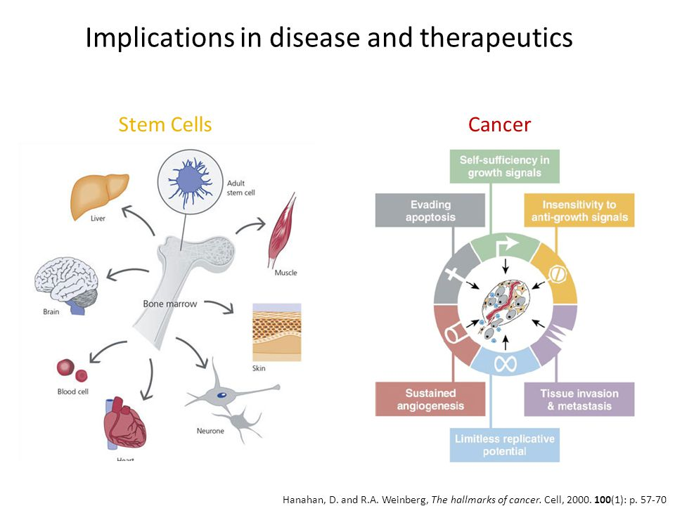 Implications in disease and therapeutics Stem CellsCancer Hanahan, D.