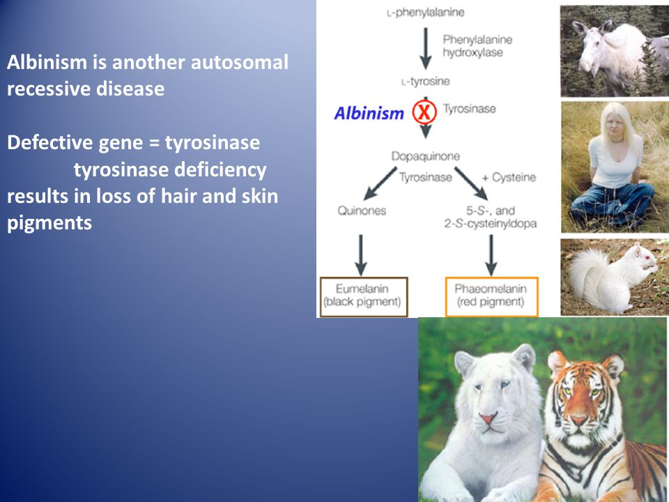 Albinism is another autosomal recessive disease Defective gene = tyrosinase tyrosinase deficiency results in loss of hair and skin pigments