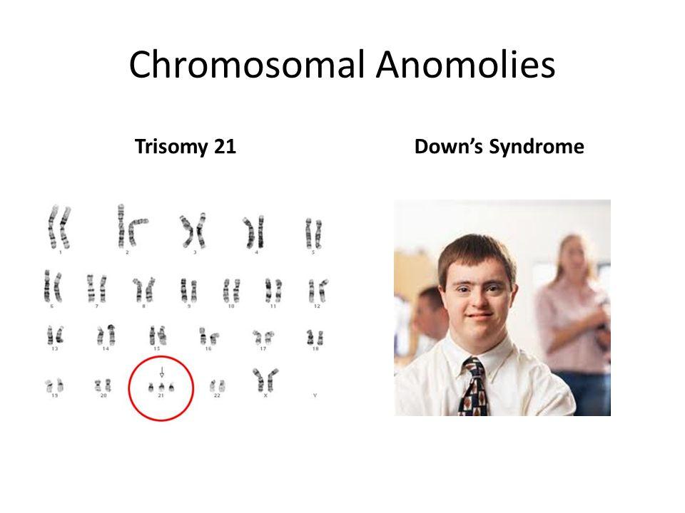 Chromosomal Anomolies Trisomy 21Down's Syndrome
