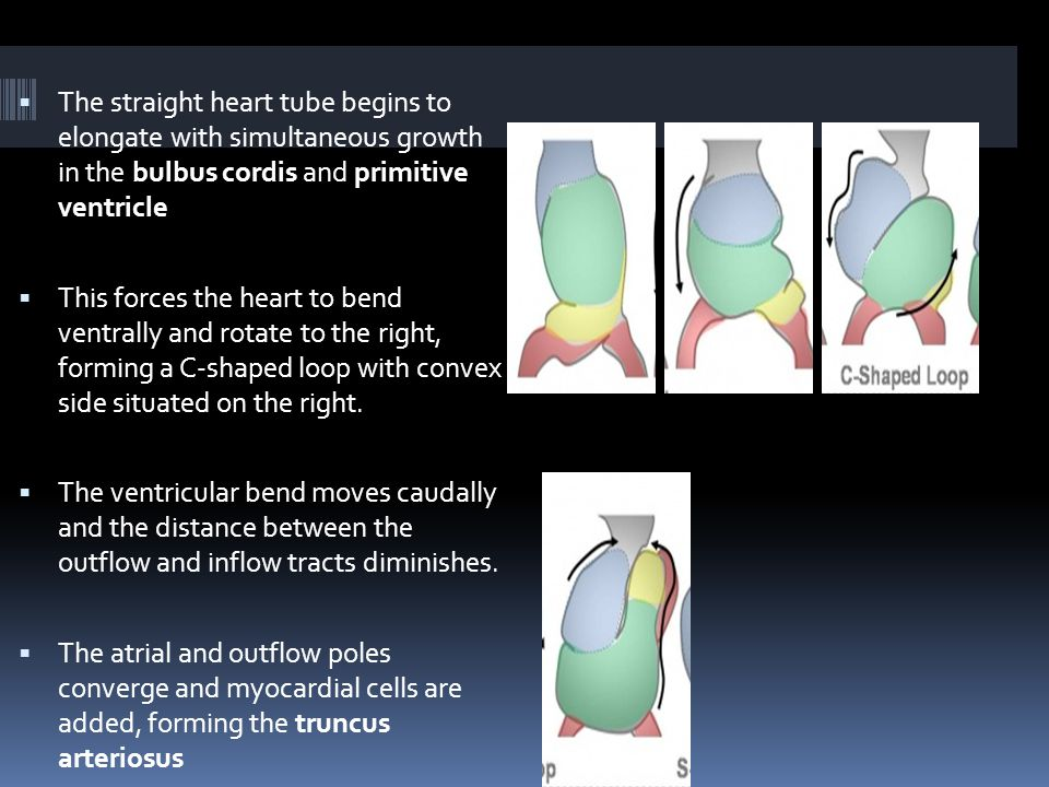  The straight heart tube begins to elongate with simultaneous growth in the bulbus cordis and primitive ventricle  This forces the heart to bend ventrally and rotate to the right, forming a C-shaped loop with convex side situated on the right.