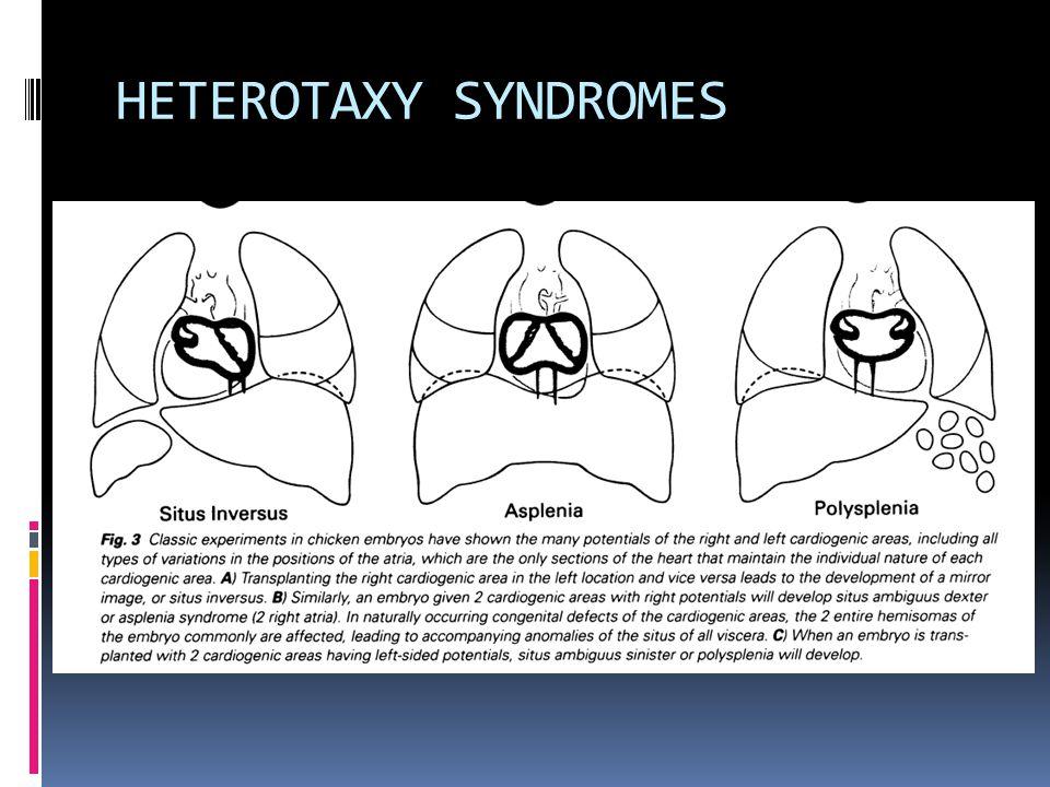 HETEROTAXY SYNDROMES
