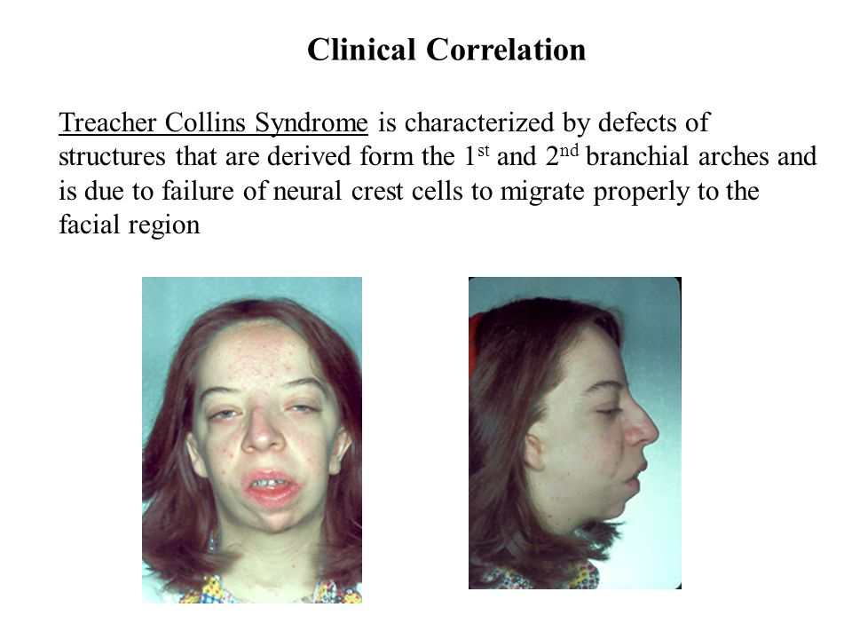 Clinical Correlation Treacher Collins Syndrome is characterized by defects of structures that are derived form the 1 st and 2 nd branchial arches and is due to failure of neural crest cells to migrate properly to the facial region