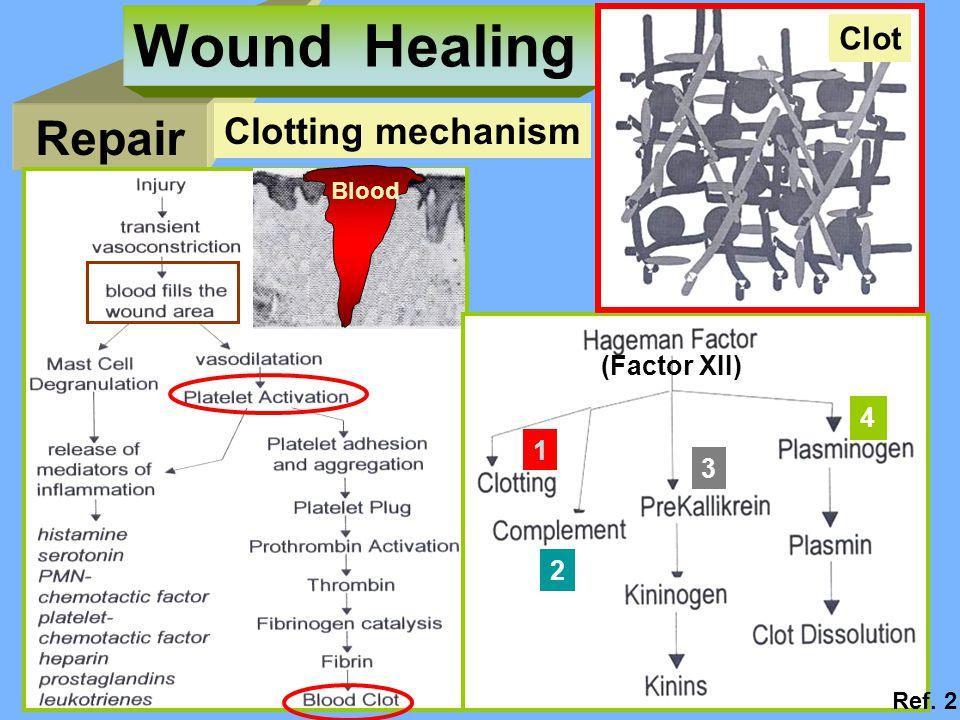 Repair Wound Healing Clotting mechanism Blood (Factor XII) 1 2 3 4 Clot Ref. 2