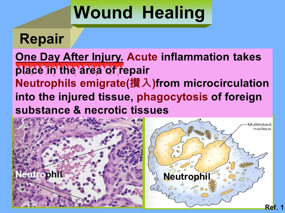 Repair Wound Healing Neutrophil One Day After Injury.