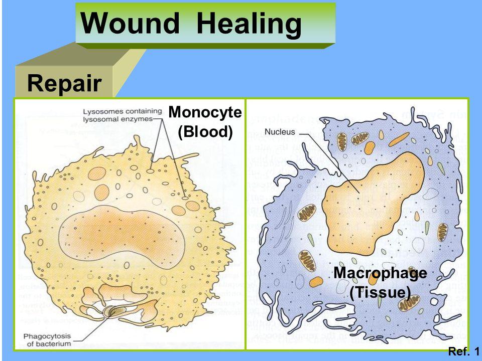 Repair Wound Healing Monocyte (Blood) Macrophage (Tissue) Ref. 1