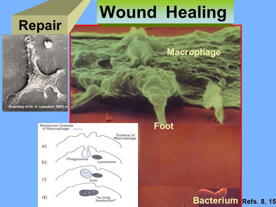 Repair Wound Healing Macrophage Foot Bacterium Refs. 8, 15