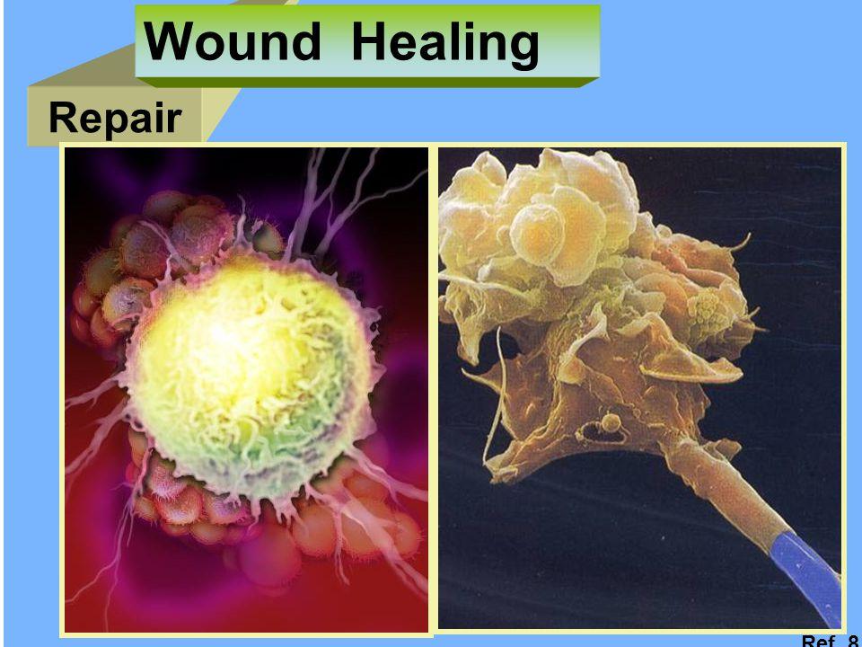Repair Wound Healing Ref. 8
