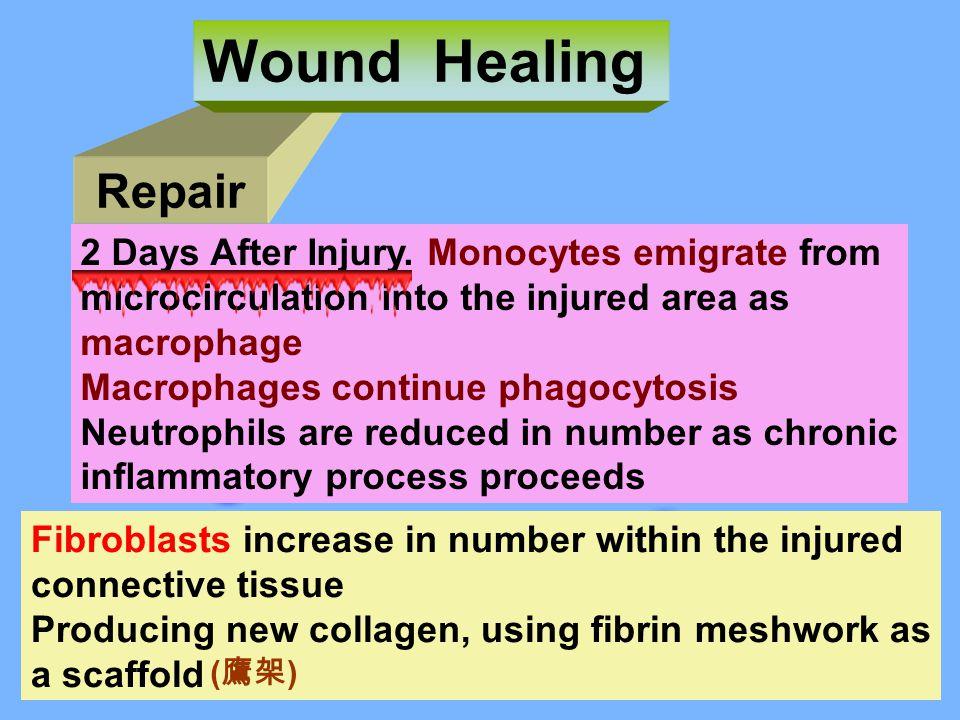 Repair Wound Healing 2 Days After Injury.
