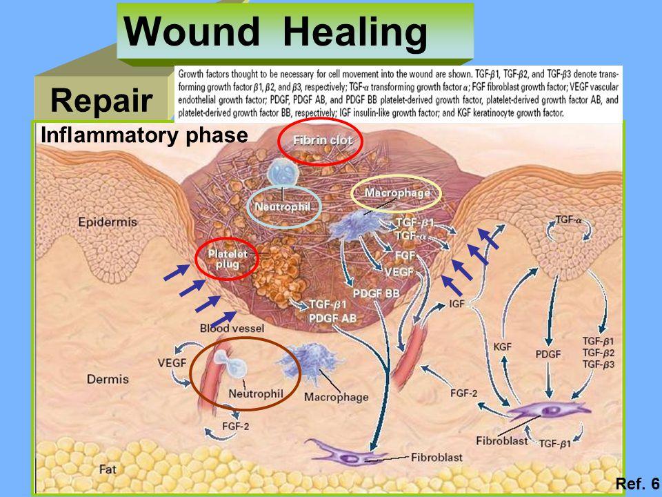 Repair Wound Healing Inflammatory phase Ref. 6