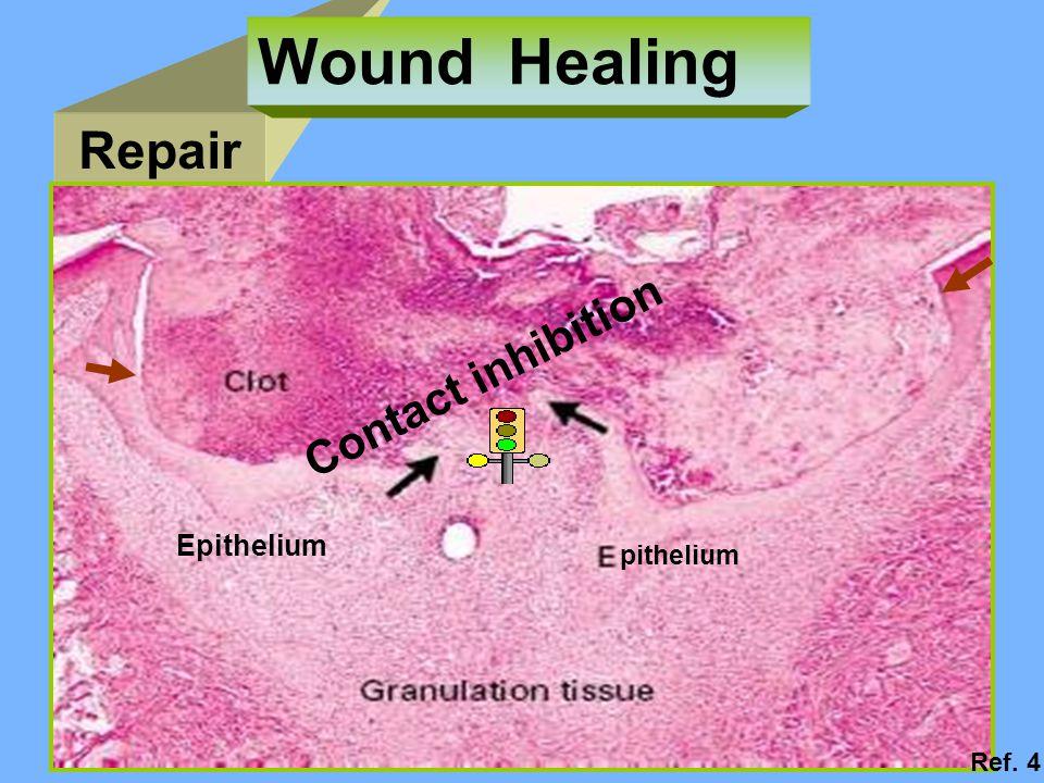 Repair Wound Healing pithelium Contact inhibition Epithelium Ref. 4