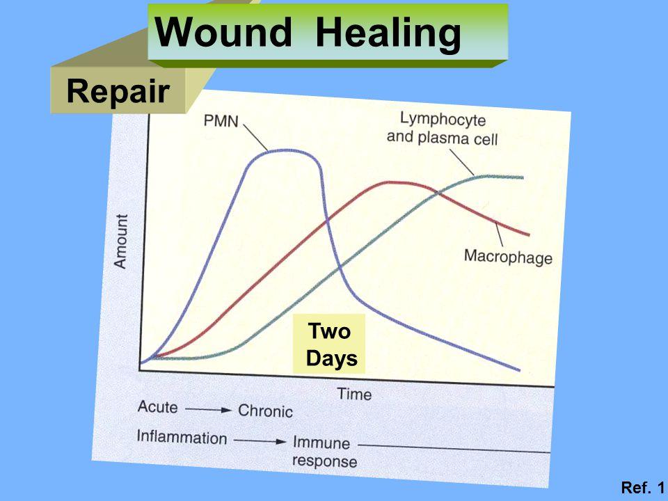 Repair Wound Healing Two Days Ref. 1