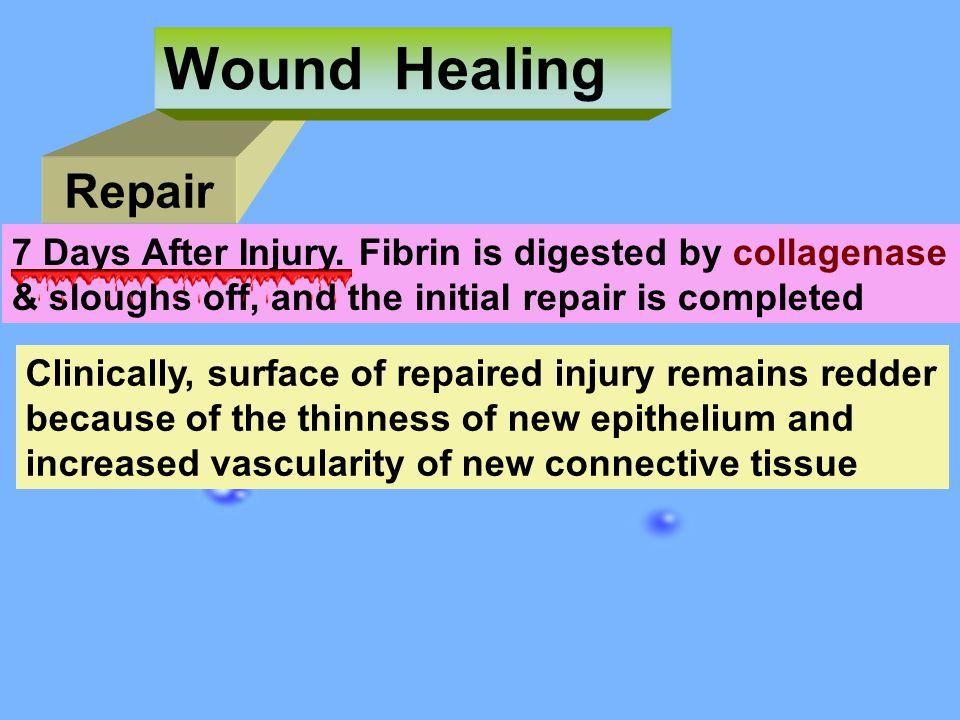 Repair Wound Healing 7 Days After Injury.