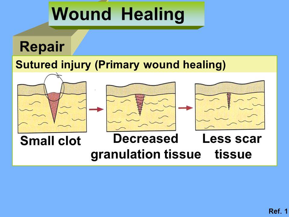 Repair Wound Healing Sutured injury (Primary wound healing) Small clot Decreased granulation tissue Less scar tissue Ref.