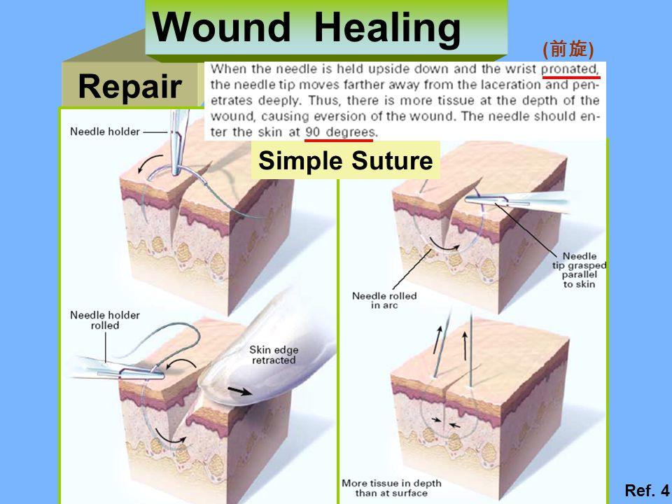 Repair Wound Healing Simple Suture ( 前旋 ) Ref. 4