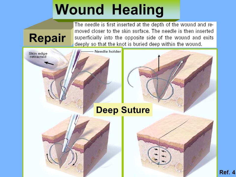 Repair Wound Healing Deep Suture Ref. 4