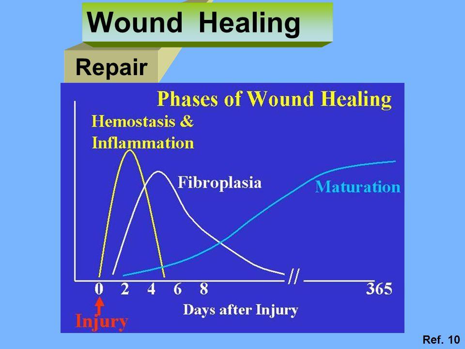 Repair Wound Healing Ref. 10
