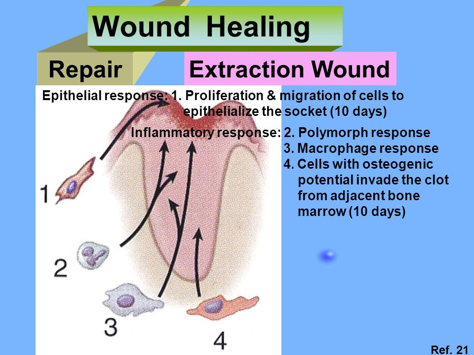 Repair Wound Healing Extraction Wound Ref.21 Epithelial response: 1.