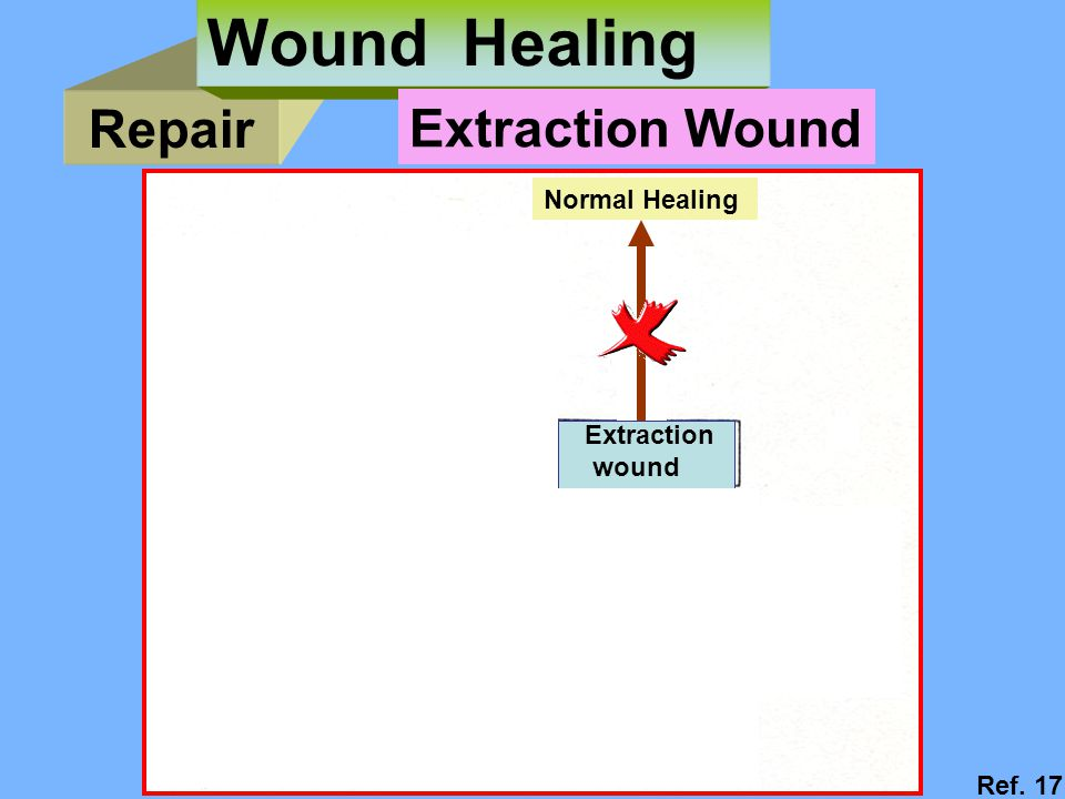Repair Wound Healing Extraction wound Normal Healing Delayed Healing (dry socket) Extraction Wound Ref.
