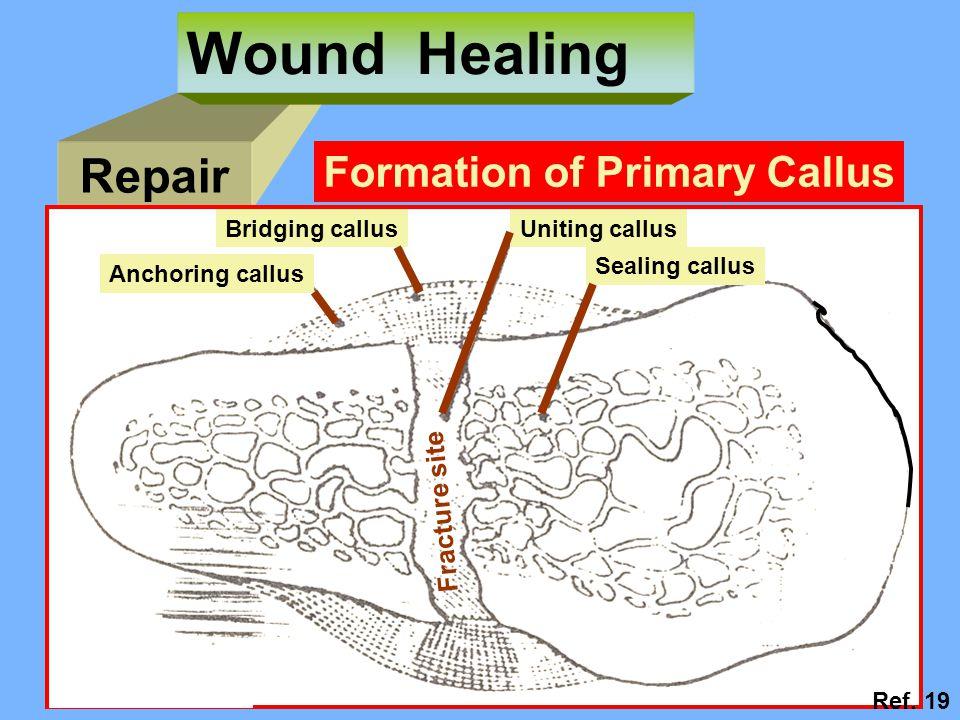 Repair Wound Healing Anchoring callus Bridging callusUniting callus Sealing callus Fracture site Formation of Primary Callus Ref.