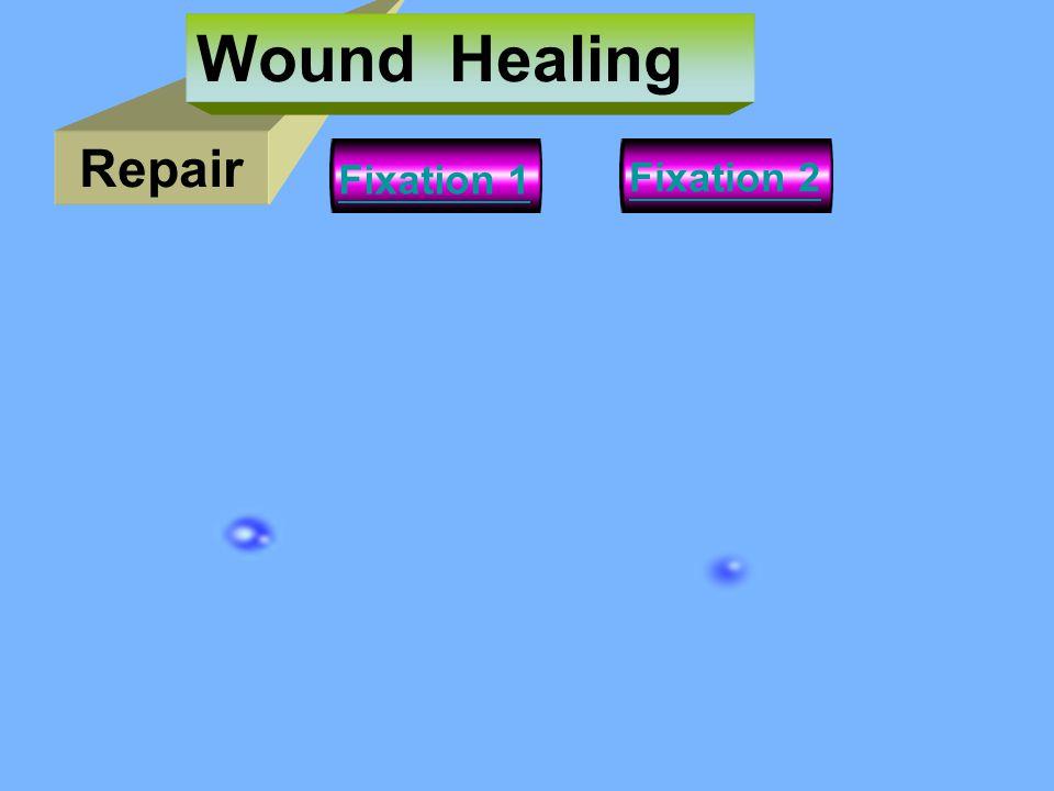 Repair Wound Healing Fixation 2 Fixation 1
