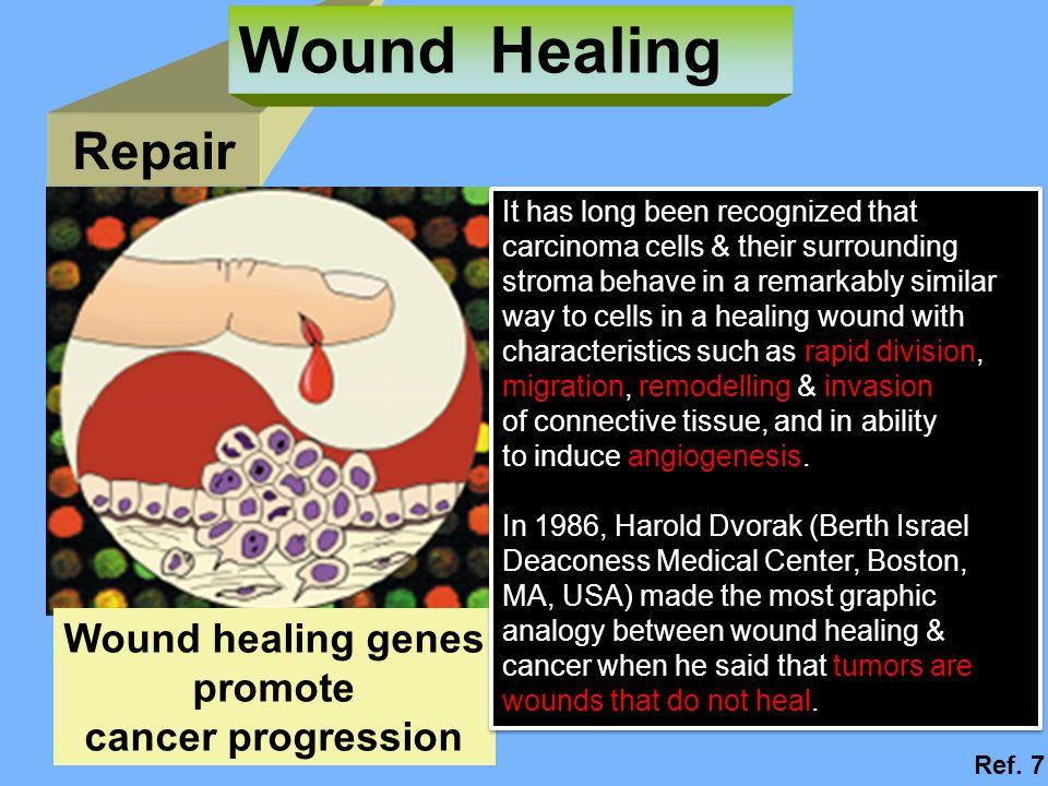 Repair Wound Healing Wound healing genes promote cancer progression Ref.