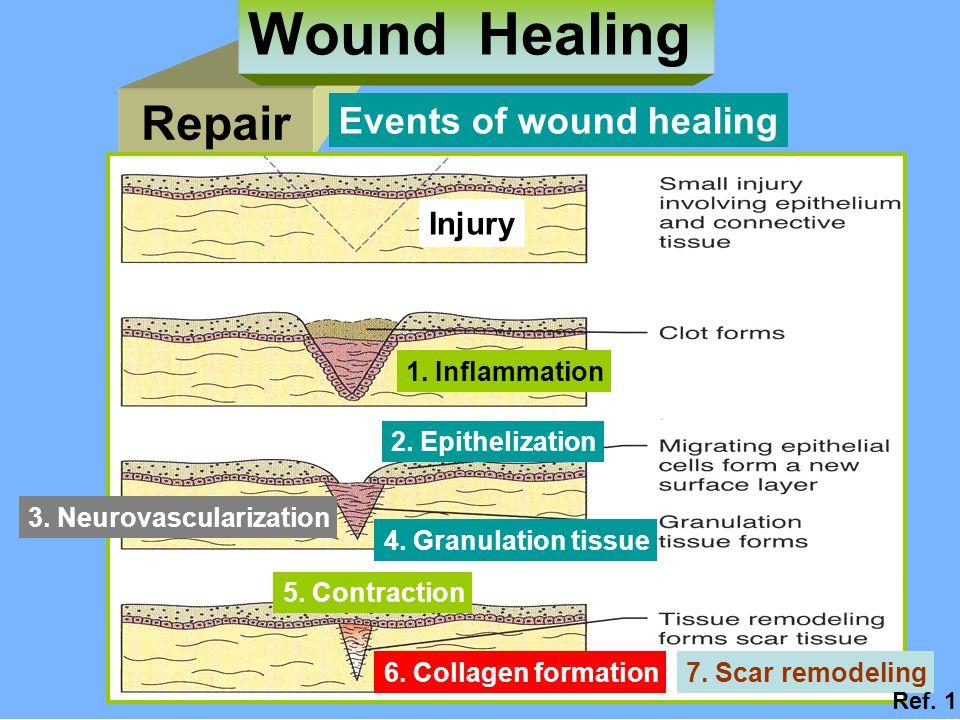 Repair Wound Healing Injury 1.Inflammation 2. Epithelization 4.