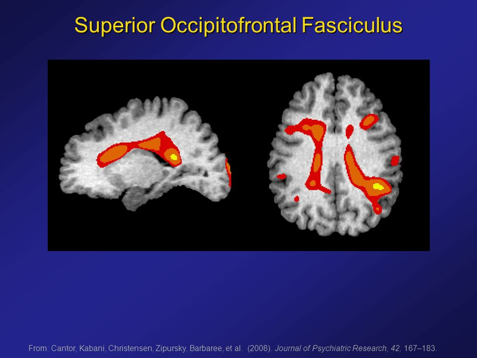 Superior Occipitofrontal Fasciculus From: Cantor, Kabani, Christensen, Zipursky, Barbaree, et al.