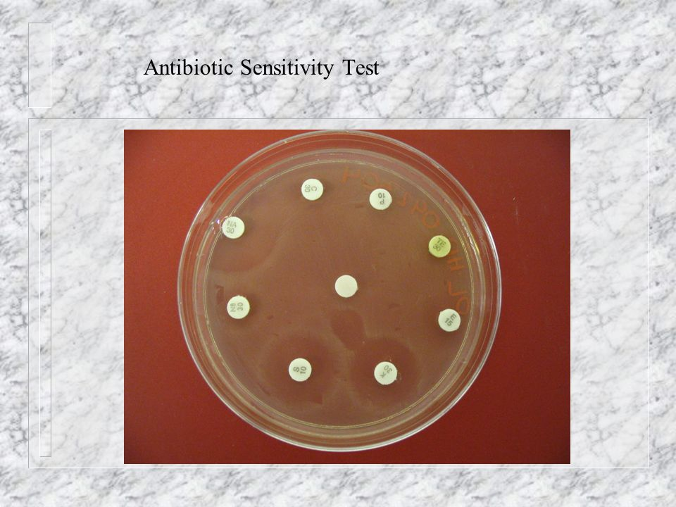 Antibiotic Sensitivity Test