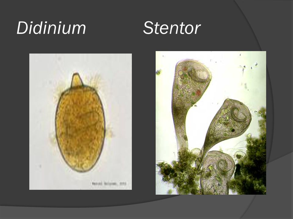 Didinium Stentor