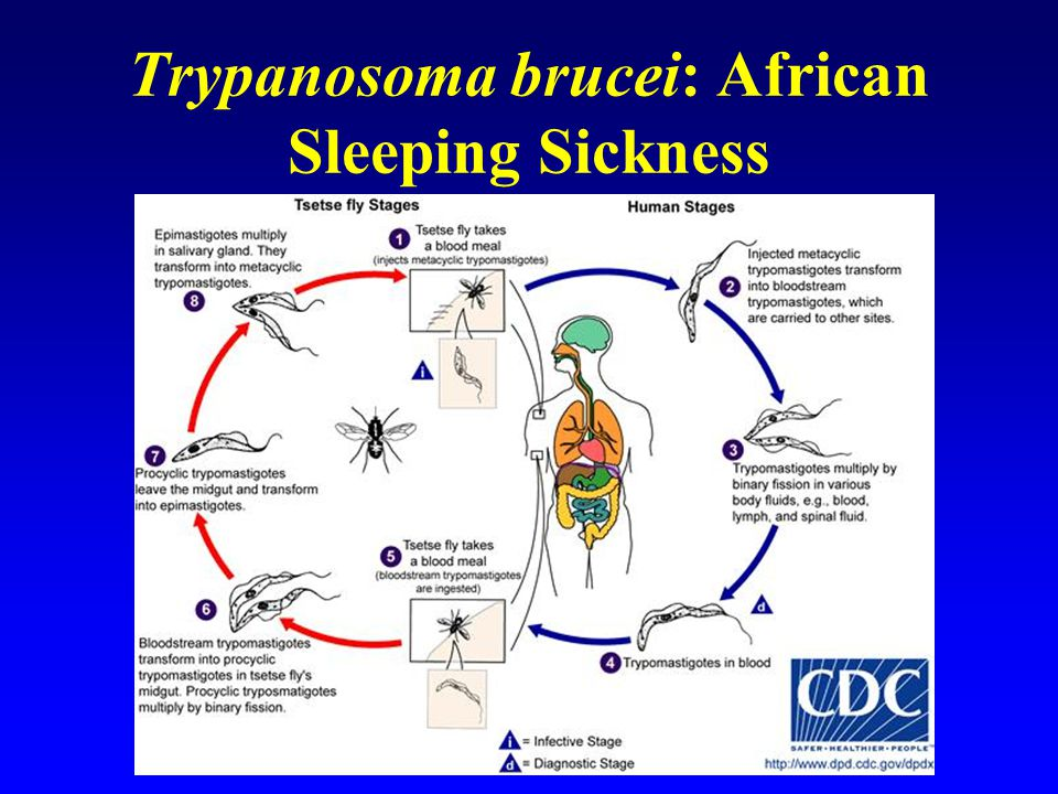 Trypanosoma brucei: African Sleeping Sickness