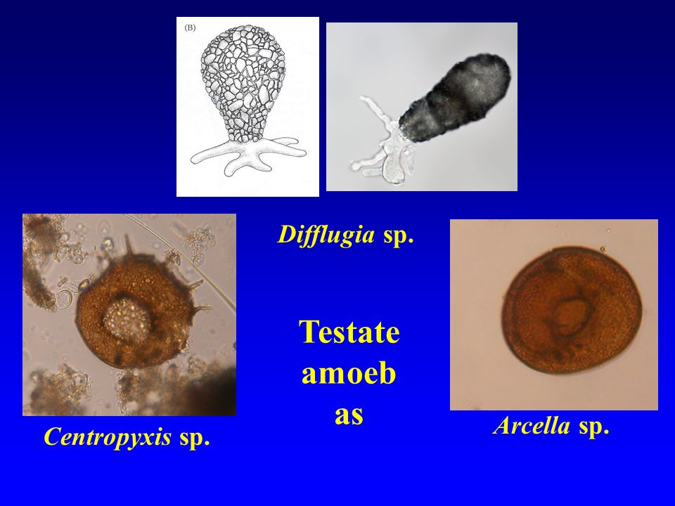 Testate amoeb as Centropyxis sp. Arcella sp. Difflugia sp.