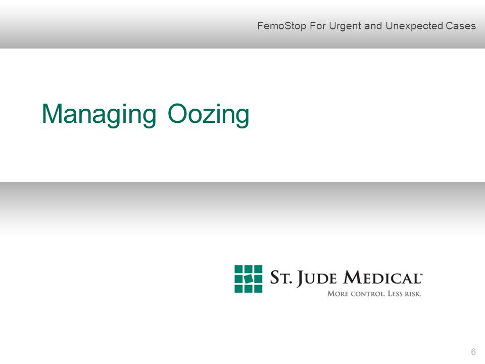 Example: Managing Oozing – Steps 1 and 2  Prepare FemoStop according to the IFU.