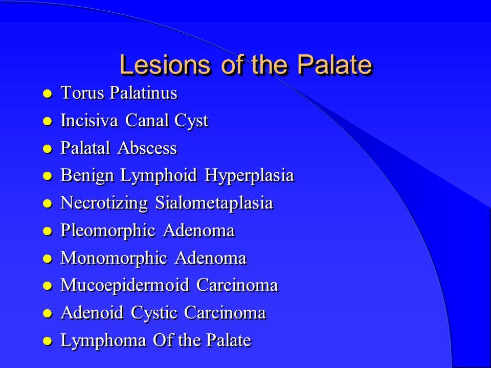 Lesions of the Palate l Torus Palatinus l Incisiva Canal Cyst l Palatal Abscess l Benign Lymphoid Hyperplasia l Necrotizing Sialometaplasia l Pleomorphic Adenoma l Monomorphic Adenoma l Mucoepidermoid Carcinoma l Adenoid Cystic Carcinoma l Lymphoma Of the Palate l Torus Palatinus l Incisiva Canal Cyst l Palatal Abscess l Benign Lymphoid Hyperplasia l Necrotizing Sialometaplasia l Pleomorphic Adenoma l Monomorphic Adenoma l Mucoepidermoid Carcinoma l Adenoid Cystic Carcinoma l Lymphoma Of the Palate