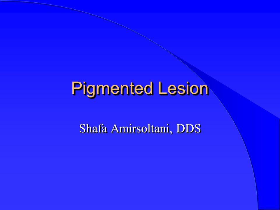 Pigmented Lesion Shafa Amirsoltani, DDS