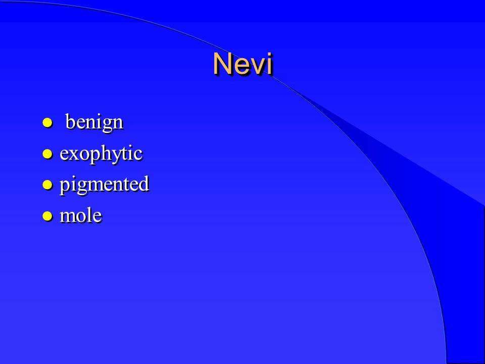 NeviNevi l benign l exophytic l pigmented l mole l benign l exophytic l pigmented l mole
