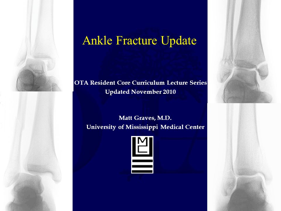 Ankle Fracture Update OTA Resident Core Curriculum Lecture Series Updated November 2010 Matt Graves, M.D. University of Mississippi Medical Center