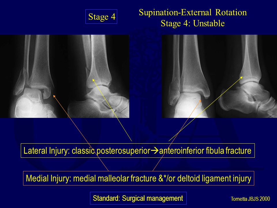 Supination-External Rotation Stage 4: Unstable Lateral Injury: classic posterosuperior  anteroinferior fibula fracture Medial Injury: medial malleolar fracture &*/or deltoid ligament injury Standard: Surgical management *Tornetta JBJS 2000 Stage 4
