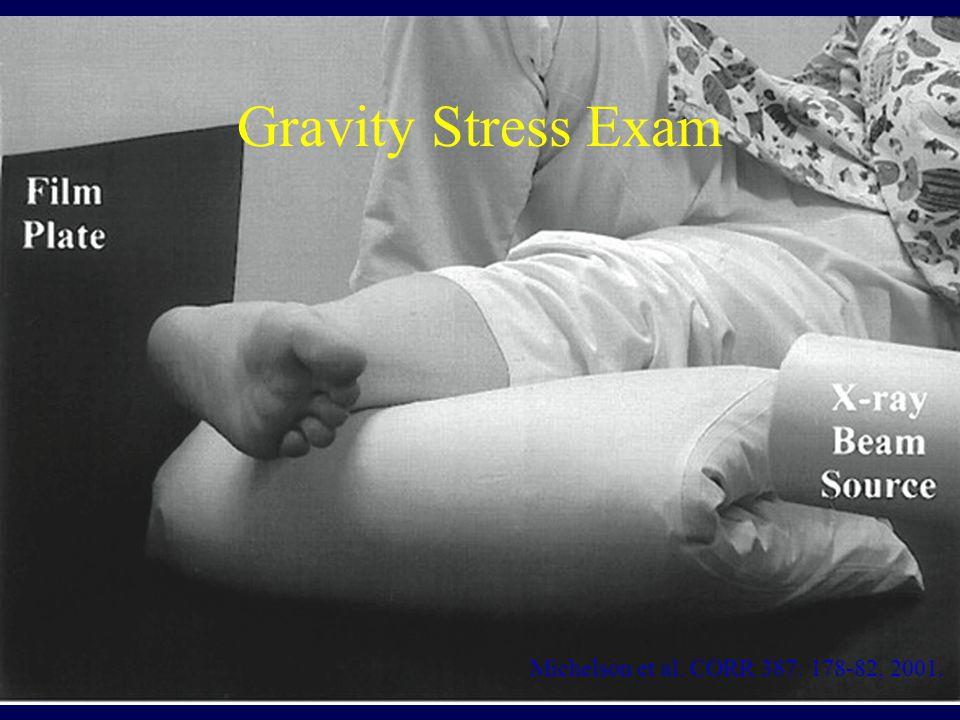 Gravity Stress Exam Michelson et al. CORR 387: 178-82, 2001.