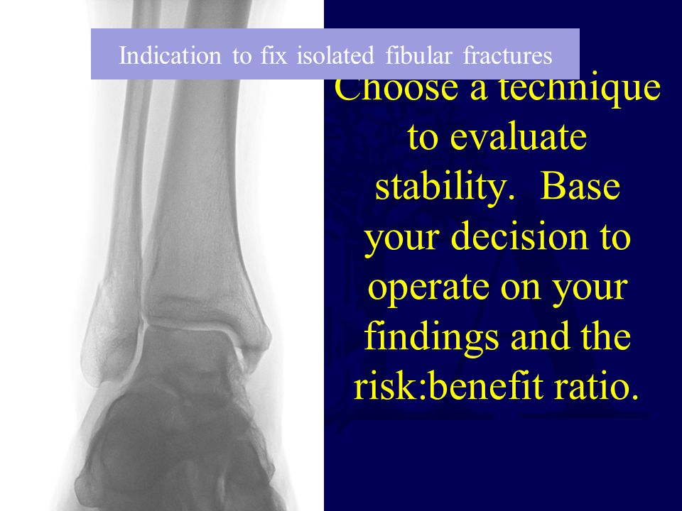 Choose a technique to evaluate stability. Base your decision to operate on your findings and the risk:benefit ratio. Indication to fix isolated fibula