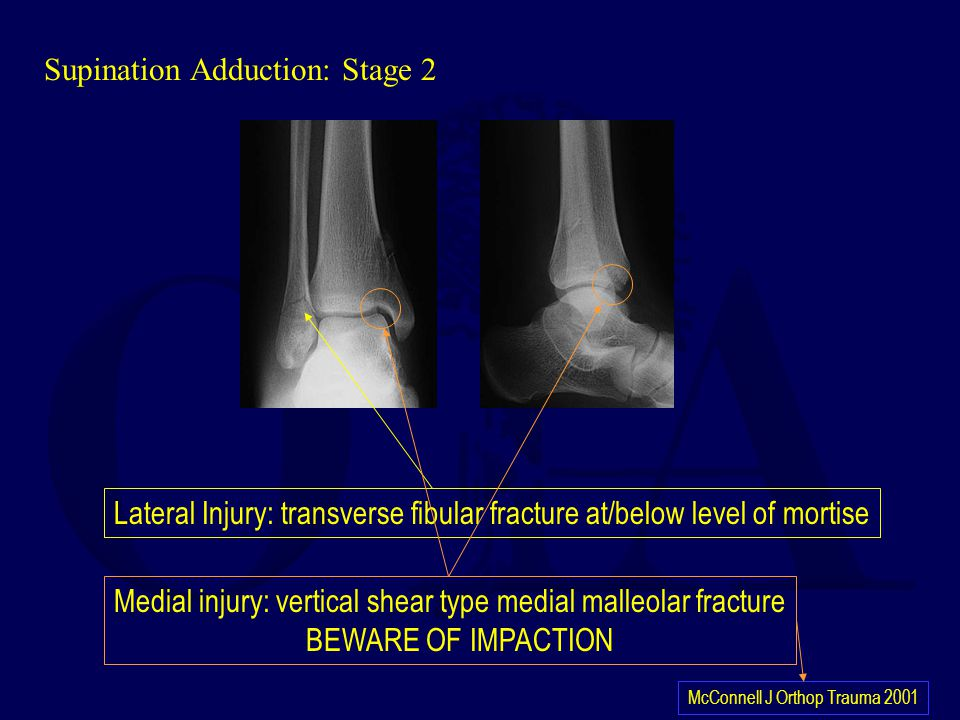 Supination Adduction: Stage 2 Lateral Injury: transverse fibular fracture at/below level of mortise Medial injury: vertical shear type medial malleola