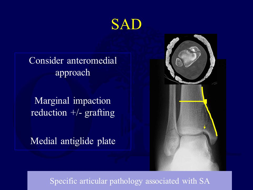 SAD Consider anteromedial approach Marginal impaction reduction +/- grafting Medial antiglide plate Specific articular pathology associated with SA