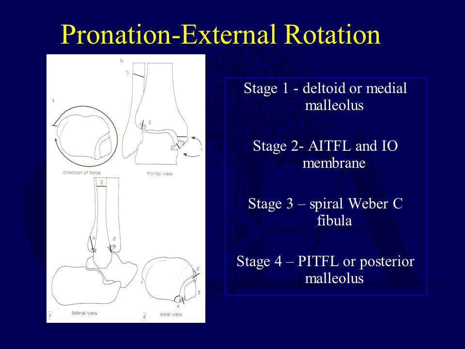 Pronation-External Rotation Stage 1 - deltoid or medial malleolus Stage 2- AITFL and IO membrane Stage 3 – spiral Weber C fibula Stage 4 – PITFL or posterior malleolus