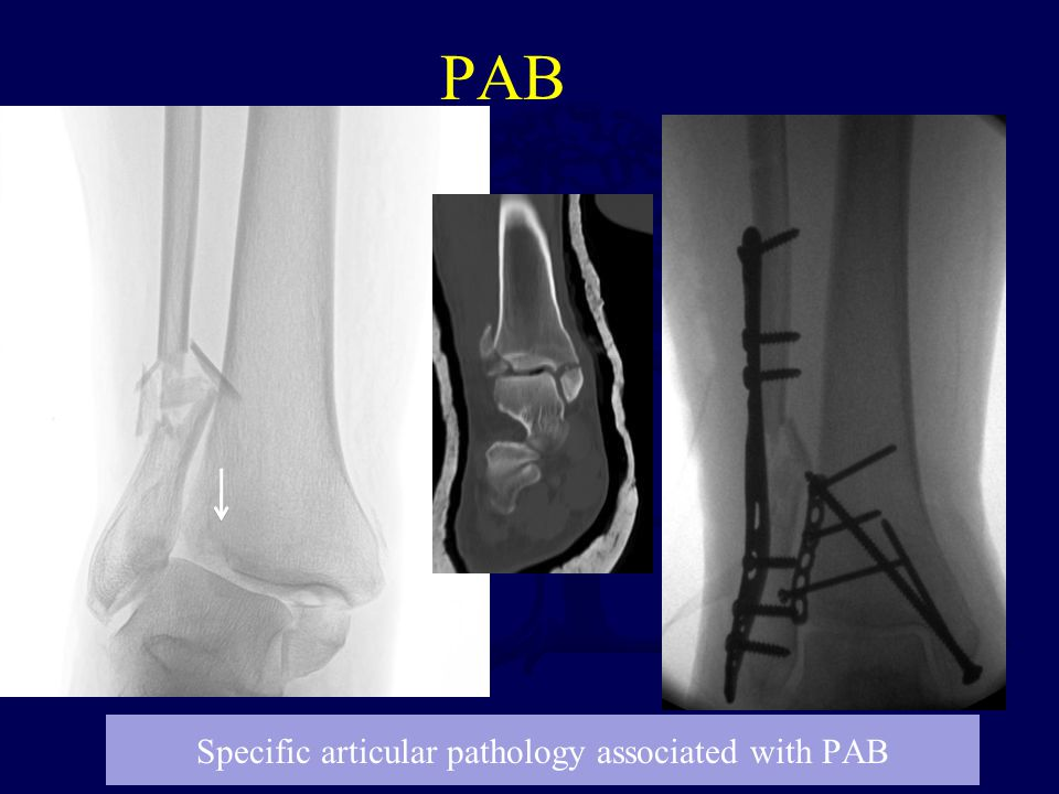 PAB Specific articular pathology associated with PAB