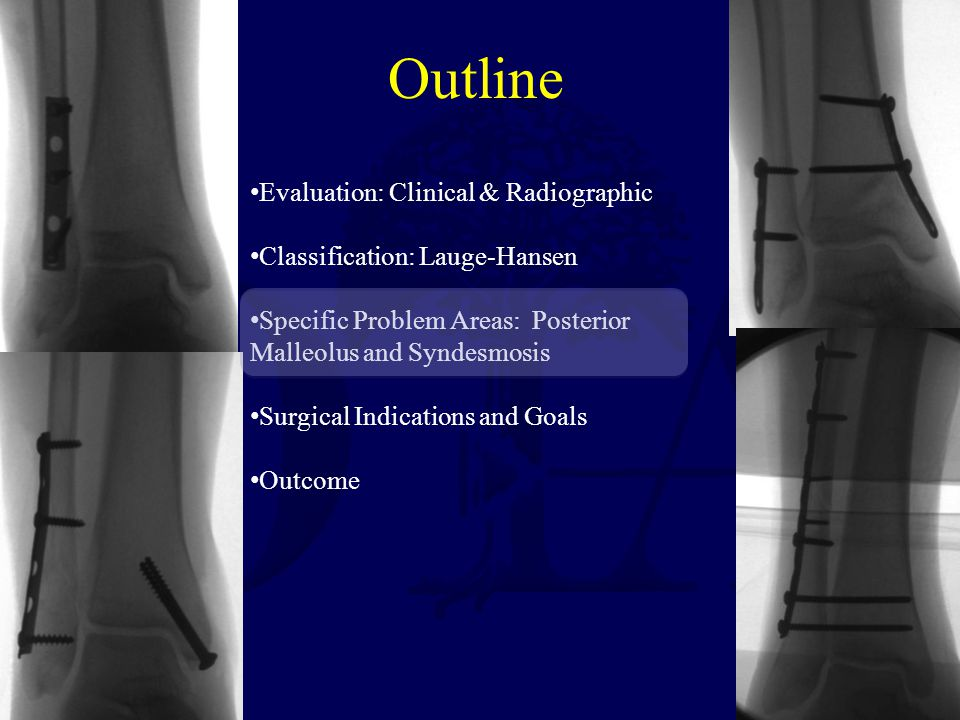 Outline Evaluation: Clinical & Radiographic Classification: Lauge-Hansen Specific Problem Areas: Posterior Malleolus and Syndesmosis Surgical Indications and Goals Outcome