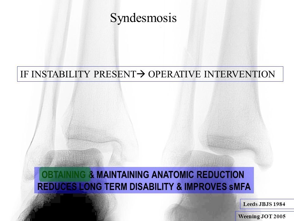 Syndesmosis IF INSTABILITY PRESENT  OPERATIVE INTERVENTION OBTAINING & MAINTAINING ANATOMIC REDUCTION REDUCES LONG TERM DISABILITY & IMPROVES sMFA Weening JOT 2005 Leeds JBJS 1984