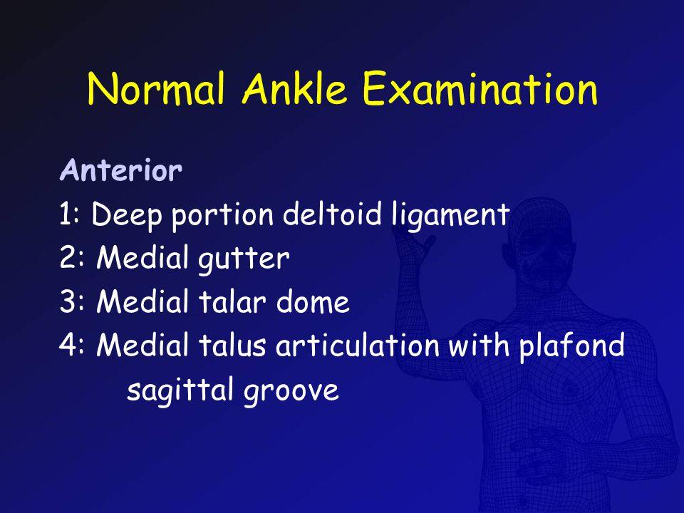 Normal Ankle Examination Anterior 1: Deep portion deltoid ligament 2: Medial gutter 3: Medial talar dome 4: Medial talus articulation with plafond sag