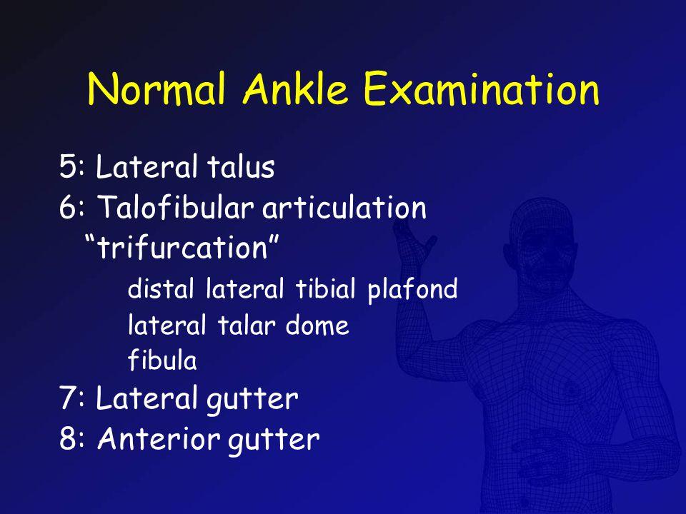 "Normal Ankle Examination 5: Lateral talus 6: Talofibular articulation ""trifurcation"" distal lateral tibial plafond lateral talar dome fibula 7: Latera"