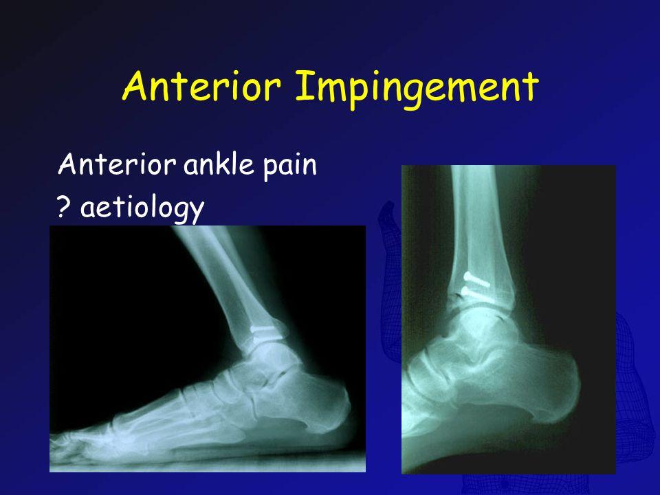 Anterior Impingement Anterior ankle pain ? aetiology