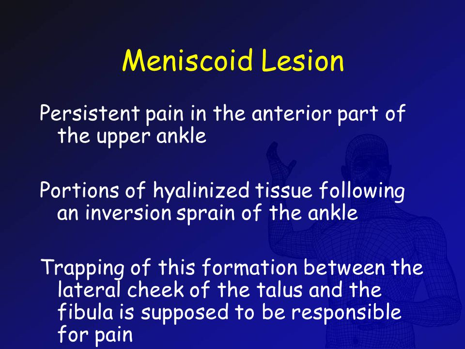 Meniscoid Lesion Persistent pain in the anterior part of the upper ankle Portions of hyalinized tissue following an inversion sprain of the ankle Trap